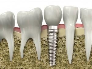 Tratamientos Dentales en Guatemala