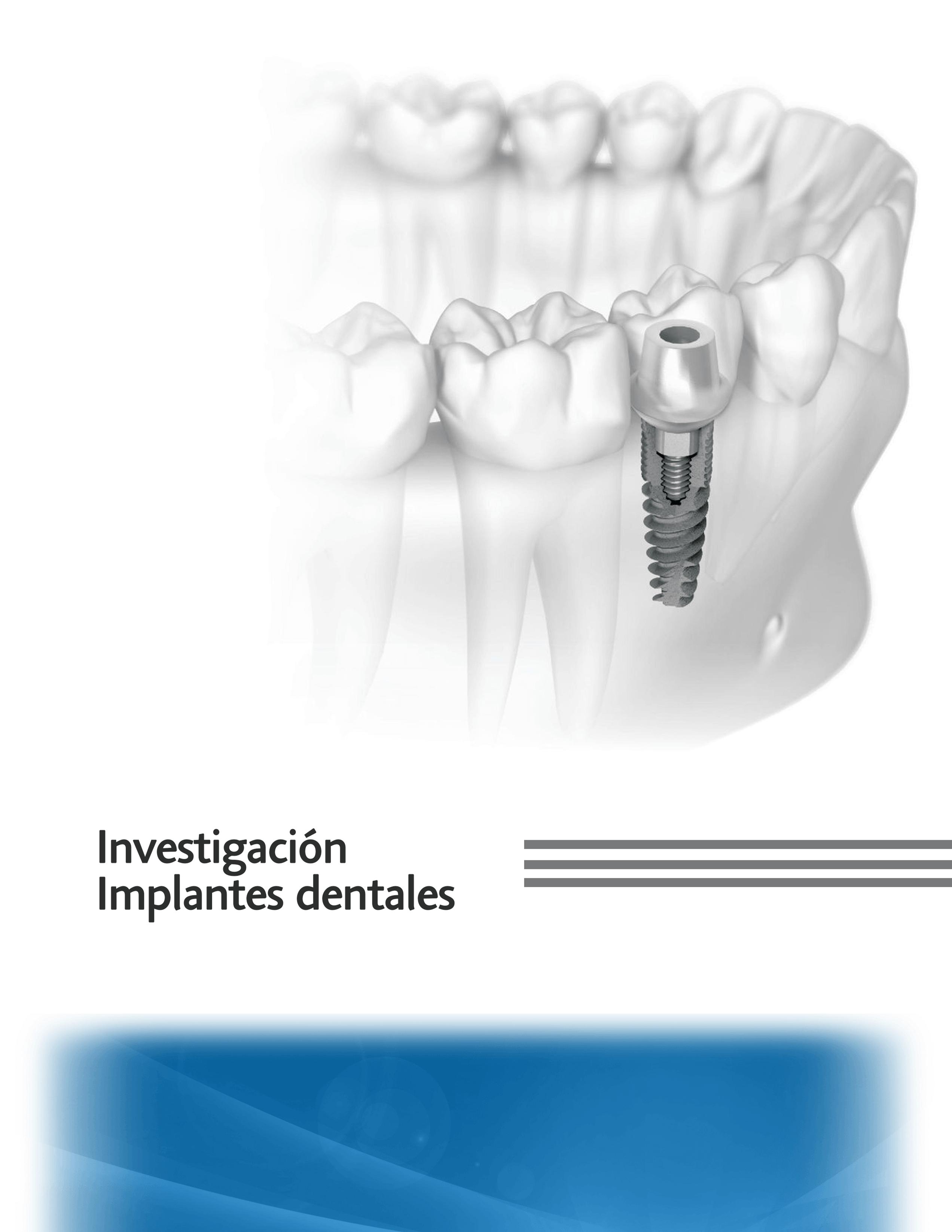 Implantes Dentales en Guatemala