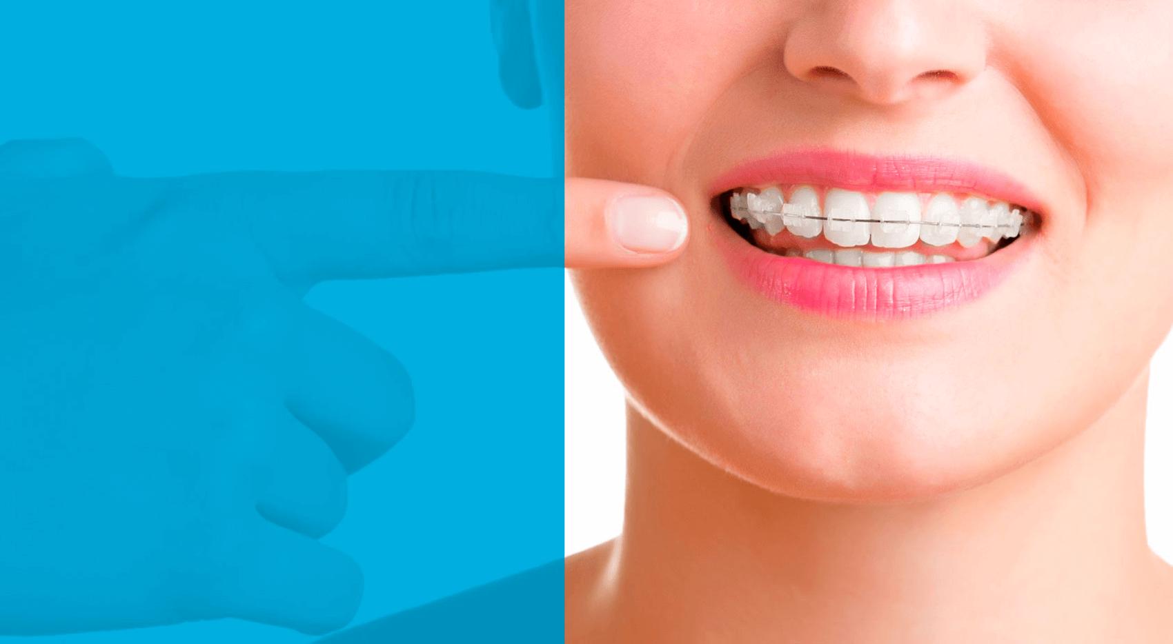 Ortodoncia en Guatemala